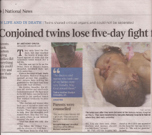 Conjoined twins-Kenya 2013