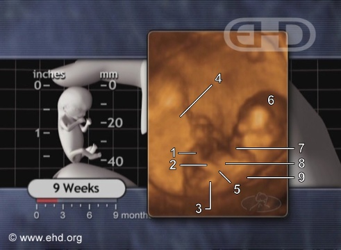9-week fetus. Image from Endowment for Human Development